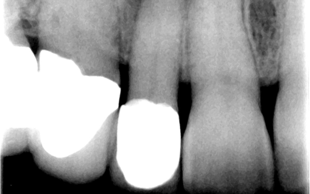 caso clinico endodoncia clinica dental monforte