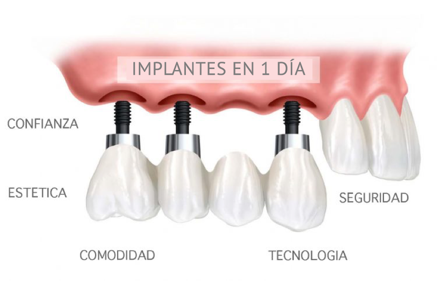 IMPLANTES EN UN SOLO DÍA CLINICA DENTAL MONFORTE