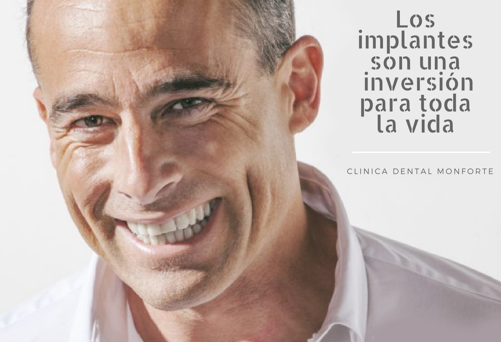 implantes clinica dental monforte