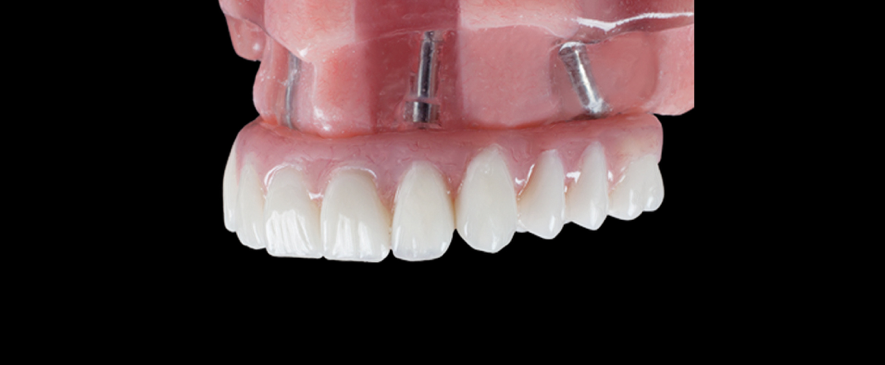 Implantes All On Four clinica dental monforte